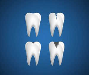 cracked teeth treatment