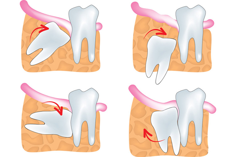Oral surgery : Wisdom teeth extraction at Burnaby Dental Studio